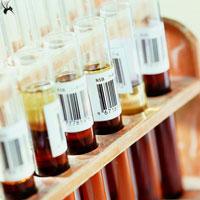诊断PNH的糖水试验