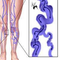 静脉曲张射频闭合消融之麻醉肿胀液配方